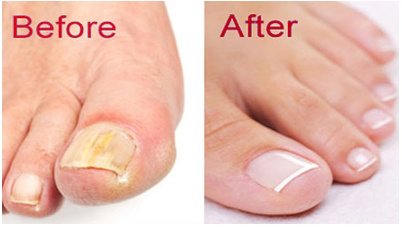 toenail fungus home remedies