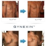 Gynexin Review – Does It Work Male Breast Reduction without Surgery?