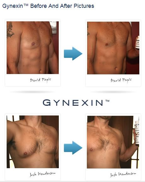 gynexin before and after pic