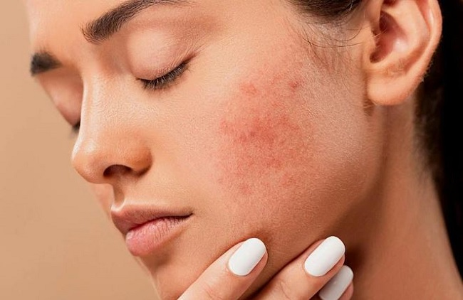 10 Best Home Remedies to Cure Acne